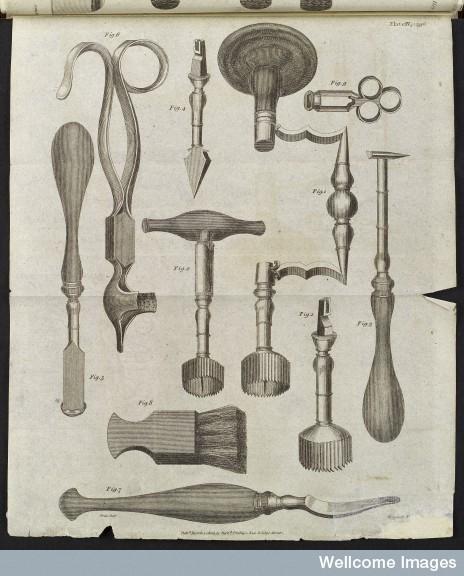 еще о врачебной теме 19го столетия. Хирургия. (Фото 24)