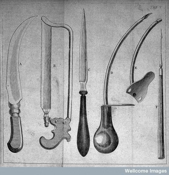 еще о врачебной теме 19го столетия. Хирургия. (Фото 22)
