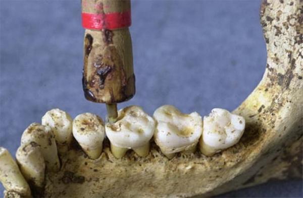 Самая страшная наука ... стоматология :) (Фото 3)