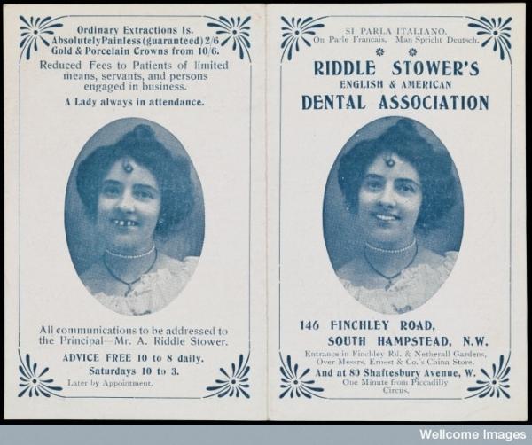 Самая страшная наука ... стоматология :) (Фото 61)