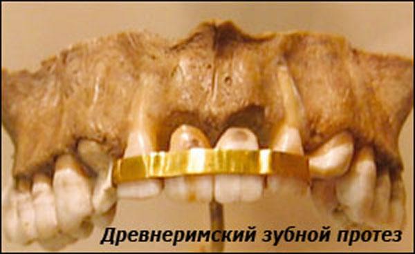 Самая страшная наука ... стоматология :) (Фото 10)