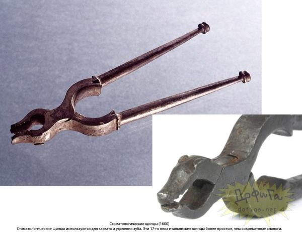 Зубодерные инструменты старых времен (Фото 3)