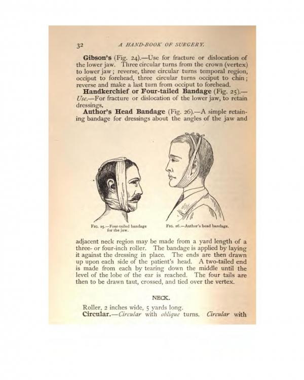 "Лечение сотрясения мозга. Из ""System of Practical Surgery"" (1904)."